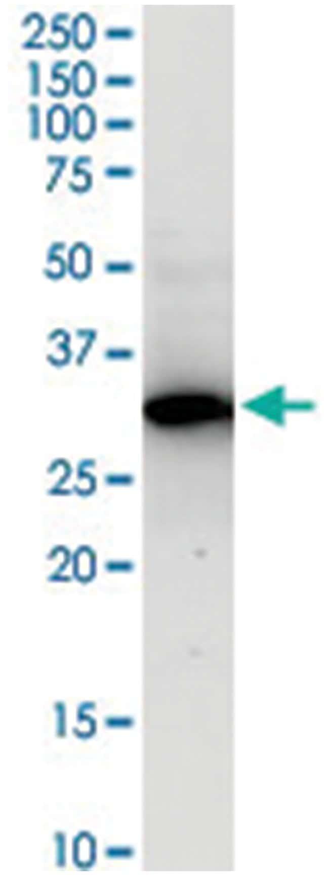 anti-RPRD1A, Human, IP-WB Antibody Pair, Abnova 1 Set:Antibodies