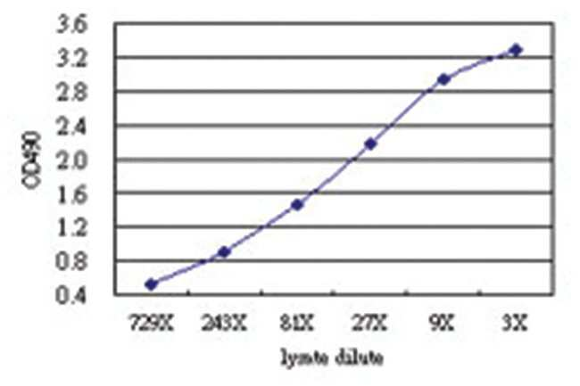 anti-DDX43 Matched Antibody Pair, Abnova 1 Set, Unlabeled:Life Sciences