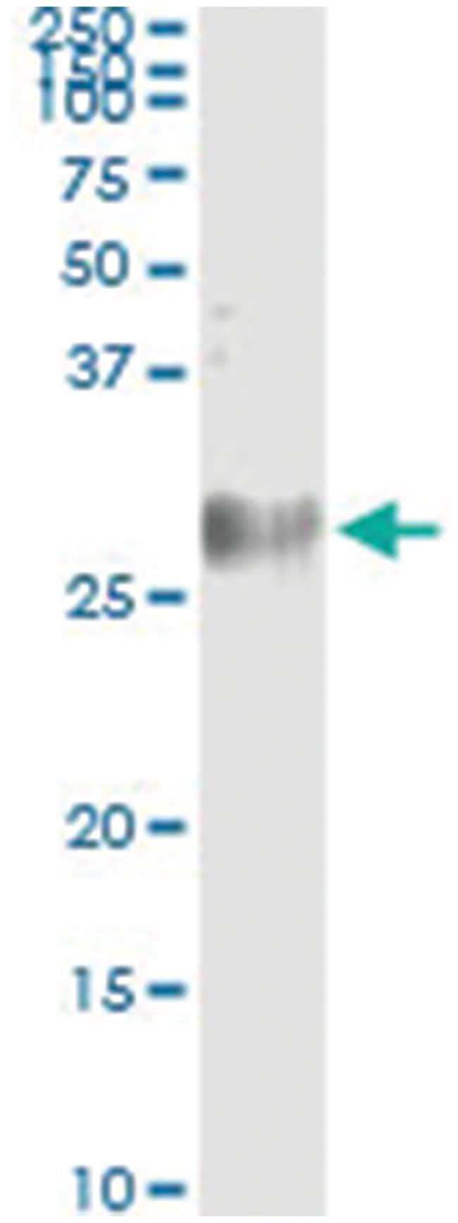 MREG, Human, IP-WB Antibody Pair (PW2), Abnova 1 Set:Life Sciences