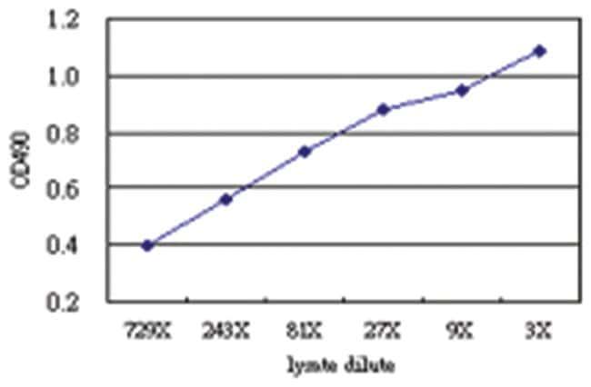 anti-KIAA1967 Matched Antibody Pair, Abnova 1 Set, Unlabeled:Life Sciences