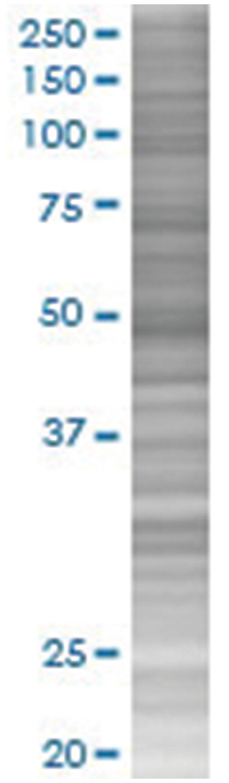 ZNF323 293T Cell Overexpression Lysate 2 (Denatured), Abnova 100µL:Life