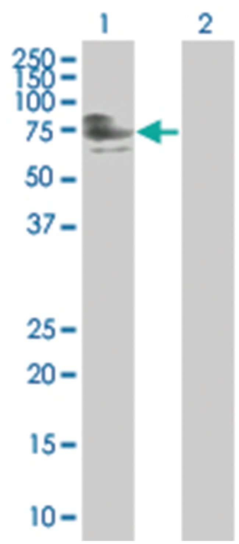 ZNFN1A4 293T Cell Overexpression Lysate (Denatured), Abnova 100µL:Life