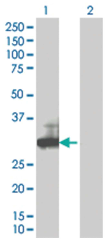 RGS18 293T Cell Overexpression Lysate 1 (Denatured), Abnova 100µL:Life
