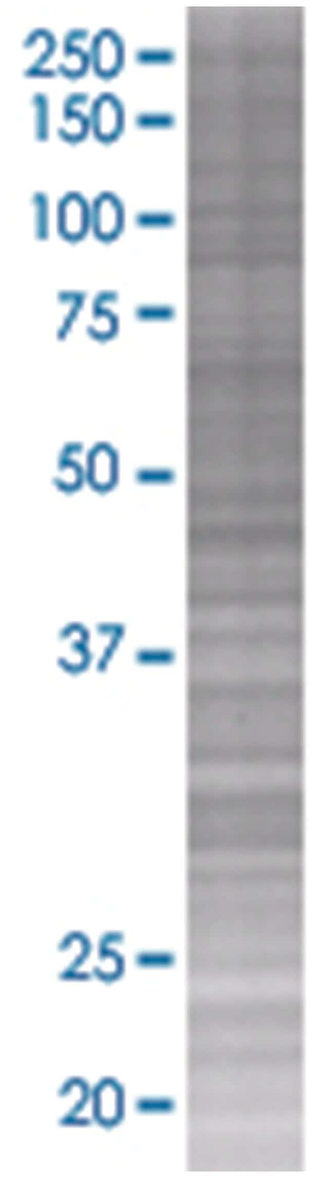 CLEC7A 293T Cell Overexpression Lysate 2 (Denatured), Abnova 100µL:Life