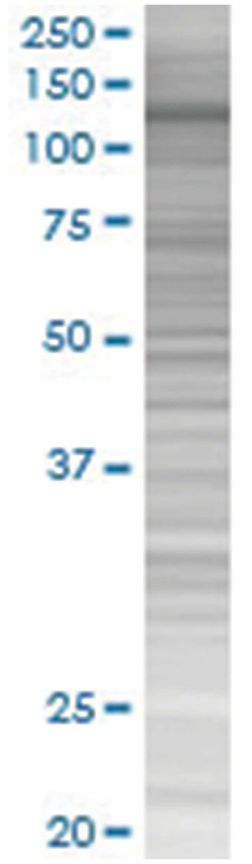 MICAL1 293T Cell Overexpression Lysate (Denatured), Abnova 100µL:Life