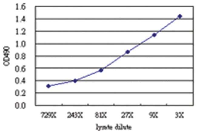 NADK, Human, Matched Antibody Pair (AP51), Abnova 1 Set, Unlabeled:Life