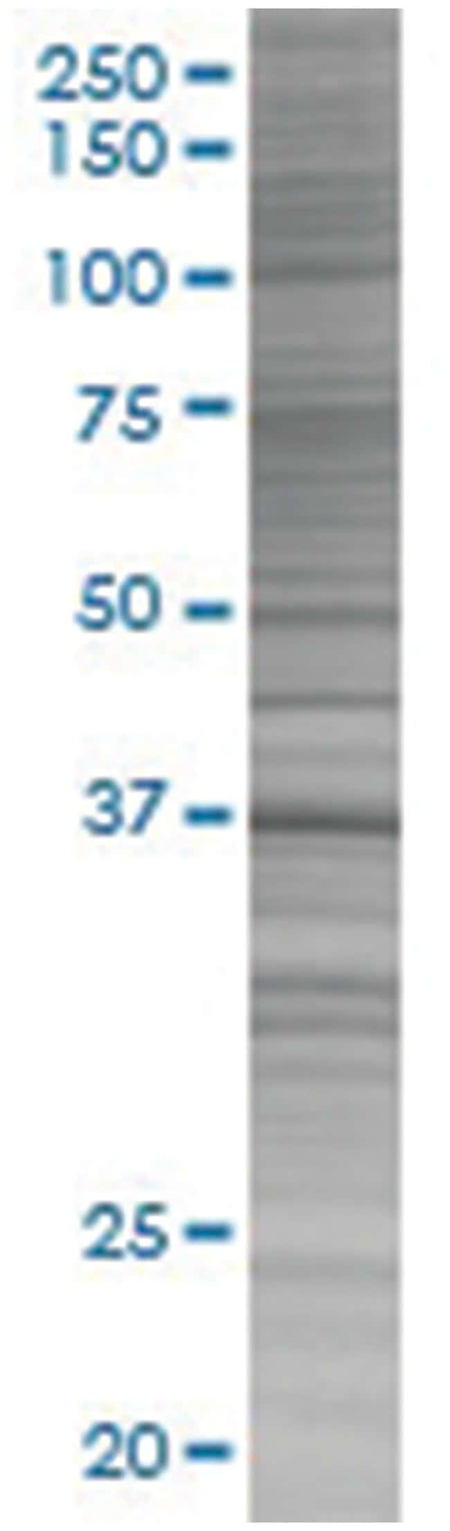 BOLL 293T Cell Overexpression Lysate (Denatured), Abnova 100µL:Life