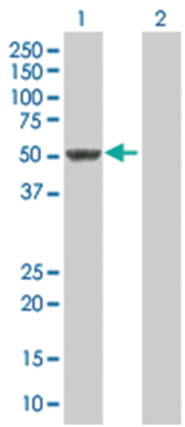 SNIP1 293T Cell Overexpression Lysate (Denatured), Abnova 100µL:Life