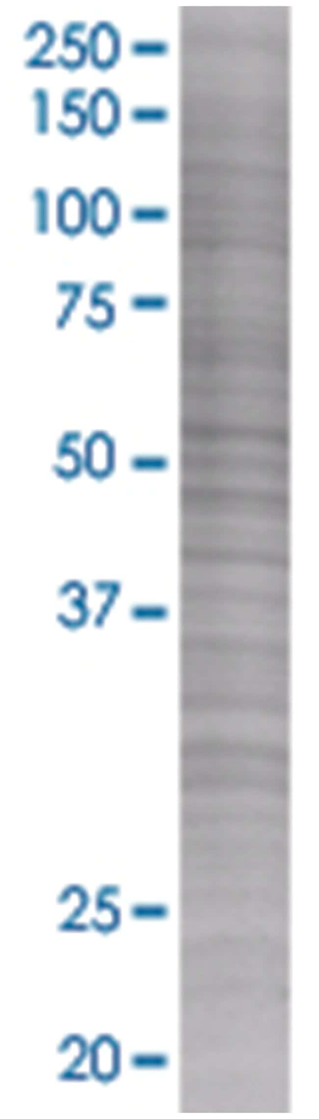 ELL3 293T Cell Overexpression Lysate (Denatured), Abnova 100µL:Life