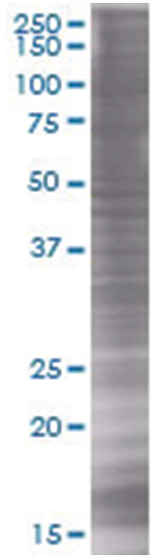 SNX25 293T Cell Overexpression Lysate (Denatured), Abnova 100µL:Life