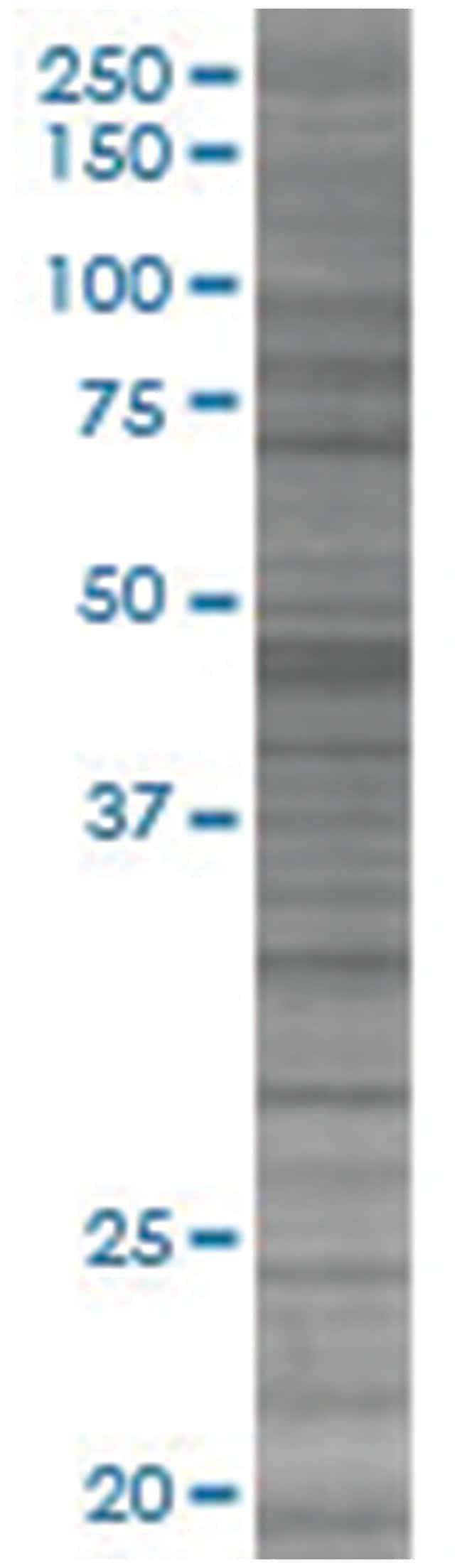 ZNF394 293T Cell Overexpression Lysate (Denatured), Abnova 100µL:Life
