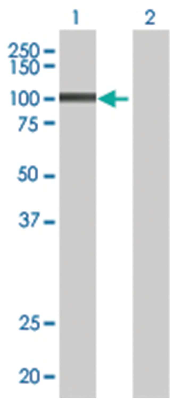L3MBTL3 293T Cell Overexpression Lysate (Denatured), Abnova 100µL:Life