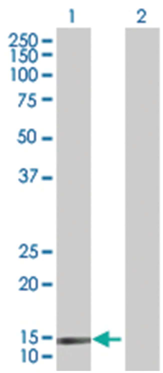 SH2D1B 293T Cell Overexpression Lysate (Denatured), Abnova 100µL:Life