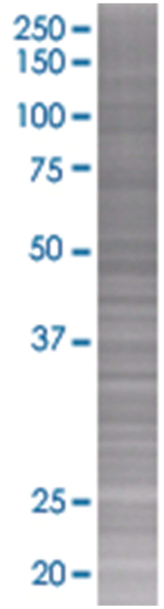 FAM3D 293T Cell Overexpression Lysate (Denatured), Abnova 100µL:Life