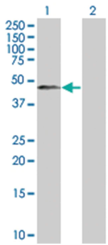 GPR151 293T Cell Overexpression Lysate (Denatured), Abnova 100µL:Life