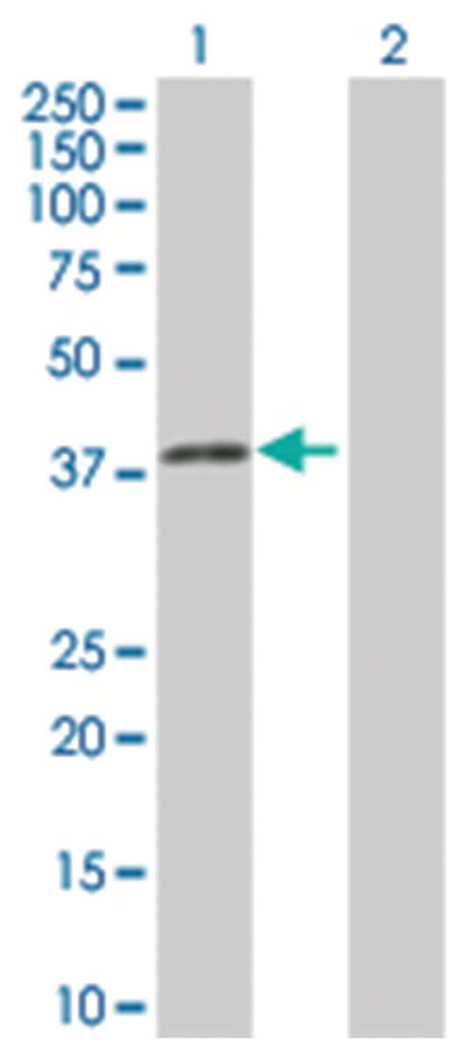SGOL1 293T Cell Overexpression Lysate (Denatured), Abnova 100µL:Life