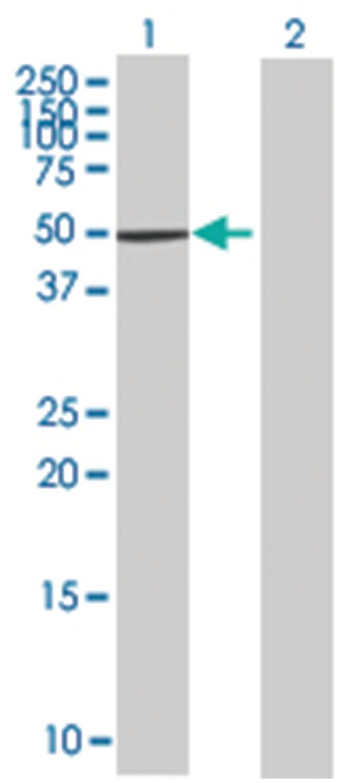 ZNF383 293T Cell Overexpression Lysate (Denatured), Abnova 100µL:Life