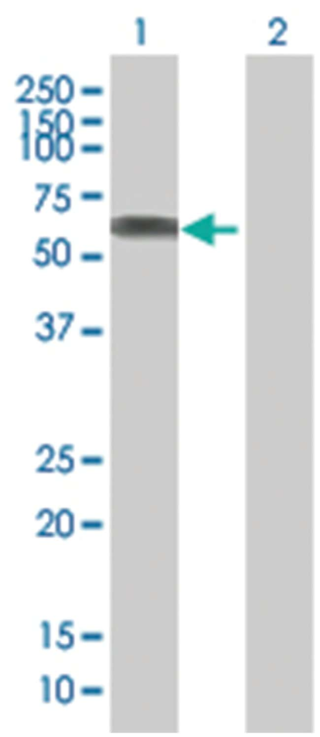 SASS6 293T Cell Overexpression Lysate (Denatured), Abnova 100µL:Life