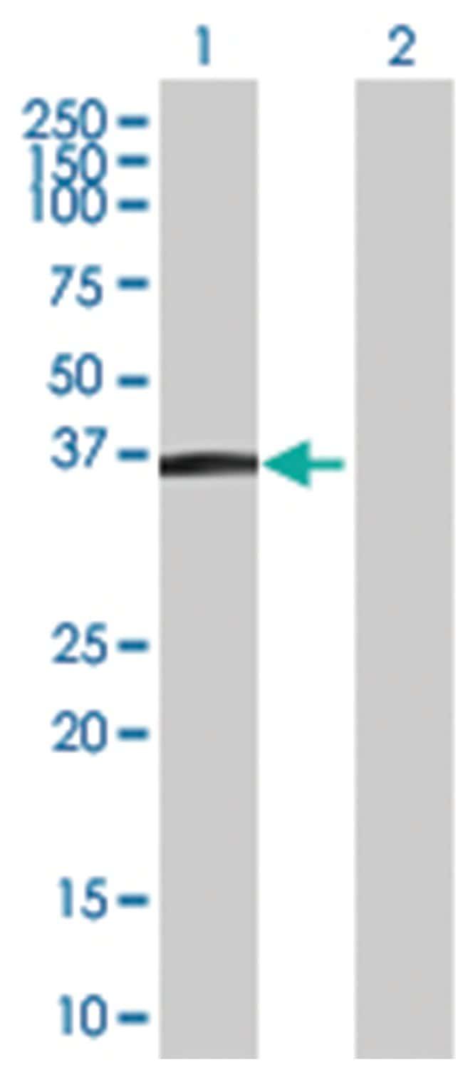 MGC17403 293T Cell Overexpression Lysate (Denatured), Abnova 100µL:Life