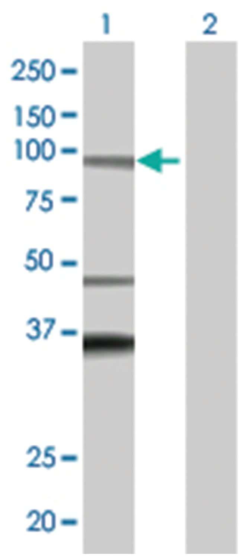 ADAM32 293T Cell Overexpression Lysate (Denatured), Abnova 100µL:Life