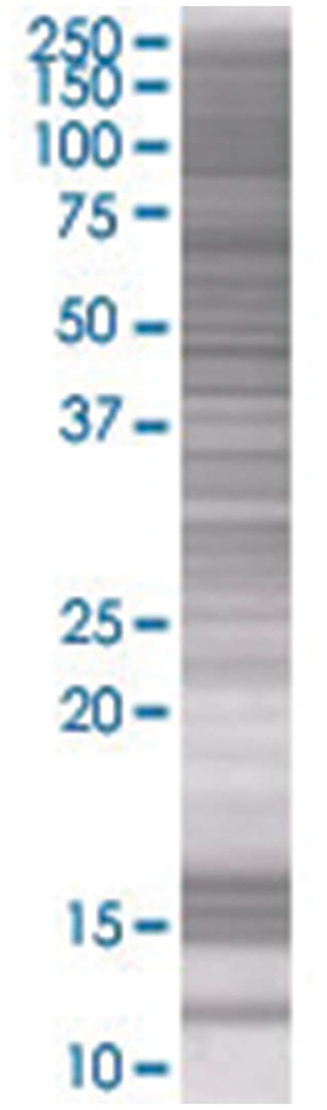 OR3A4 293T Cell Overexpression Lysate (Denatured), Abnova 100µL:Life