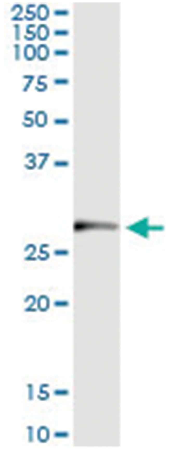 TRIM72, Human, IP-WB Antibody Pair (PW4), Abnova 1 Set:Antibodies
