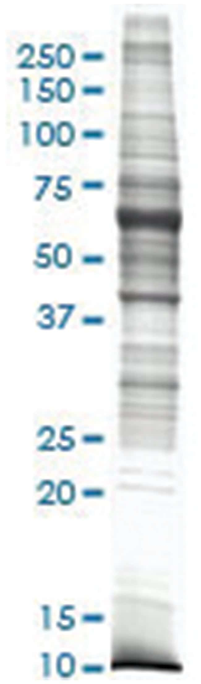 Rat lung tissue lysate, Non-denatured; Abnova 50μg:Protein Analysis