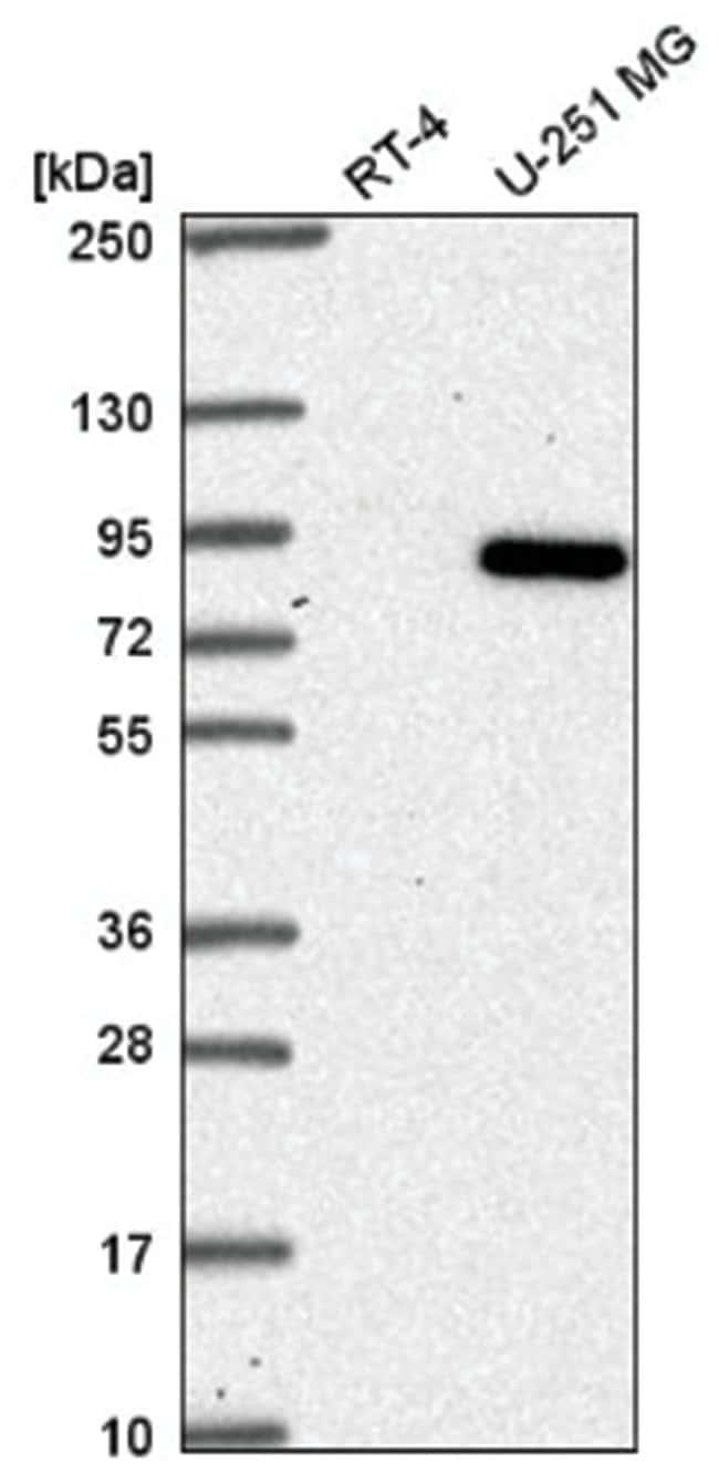 ABCB6 Rabbit anti-Human, Mouse, Polyclonal, Novus Biologicals 100µL;