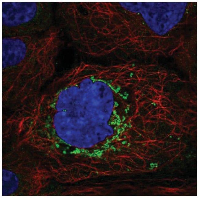 ABHD10 Rabbit anti-Human, Polyclonal, Novus Biologicals 100µL; Unlabeled