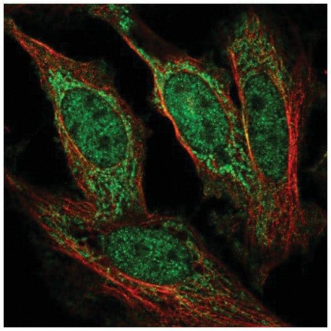 AF4 Rabbit anti-Human, Polyclonal, Novus Biologicals 100µL; Unlabeled