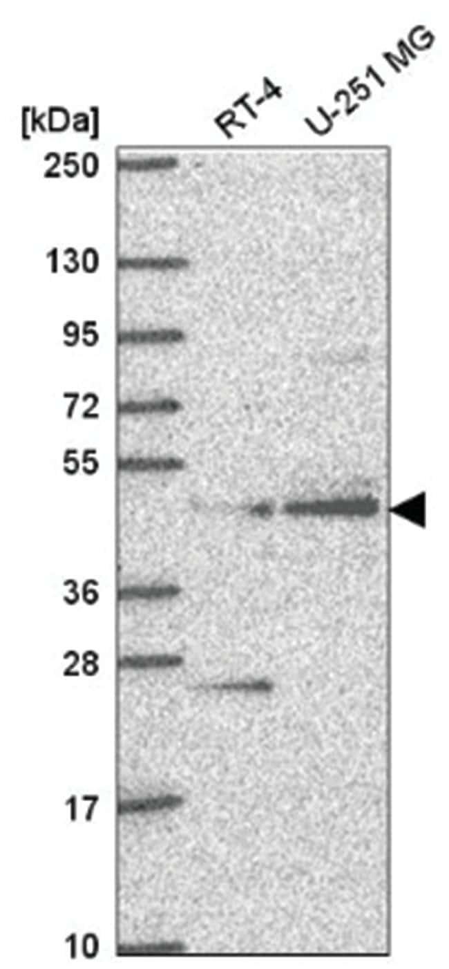 AGXT2L1 Rabbit anti-Human, Polyclonal, Novus Biologicals 100µL; Unlabeled