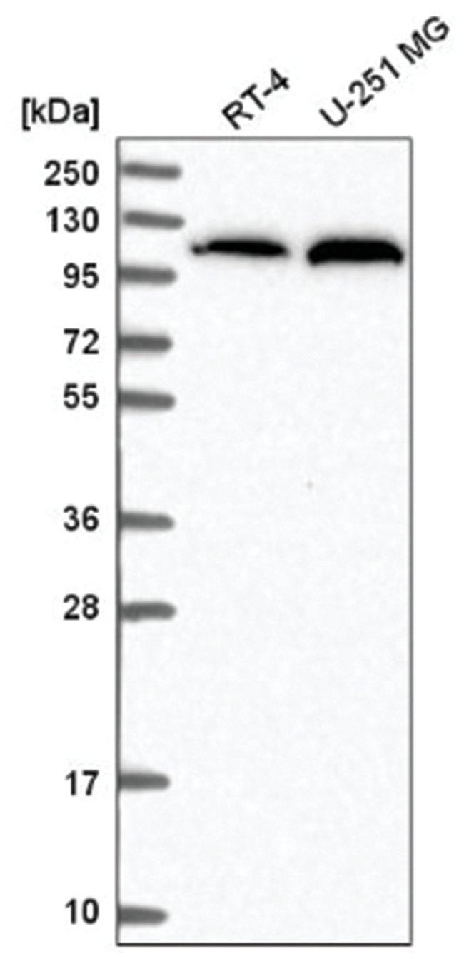Alanyl tRNA synthetase Rabbit anti-Human, Polyclonal, Novus Biologicals