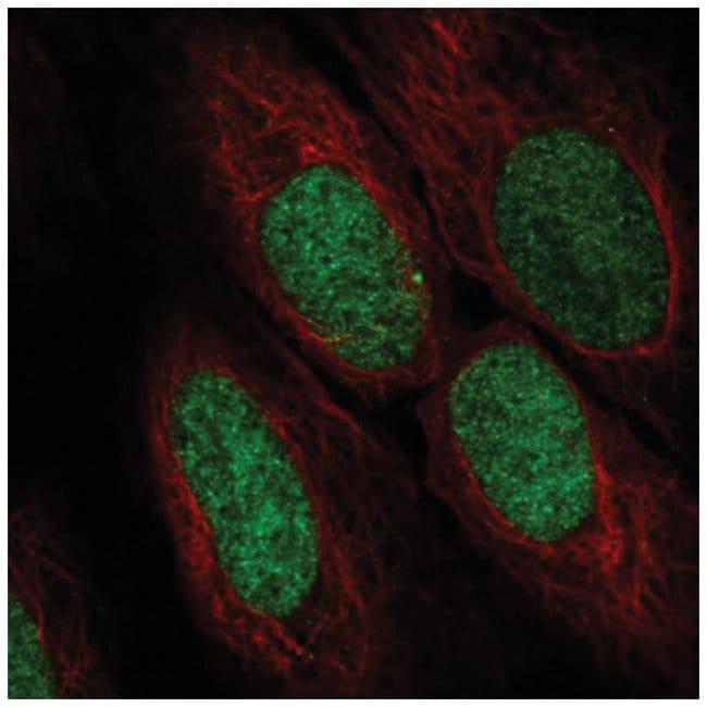 ASF1a Rabbit anti-Human, Polyclonal, Novus Biologicals 100µL; Unlabeled