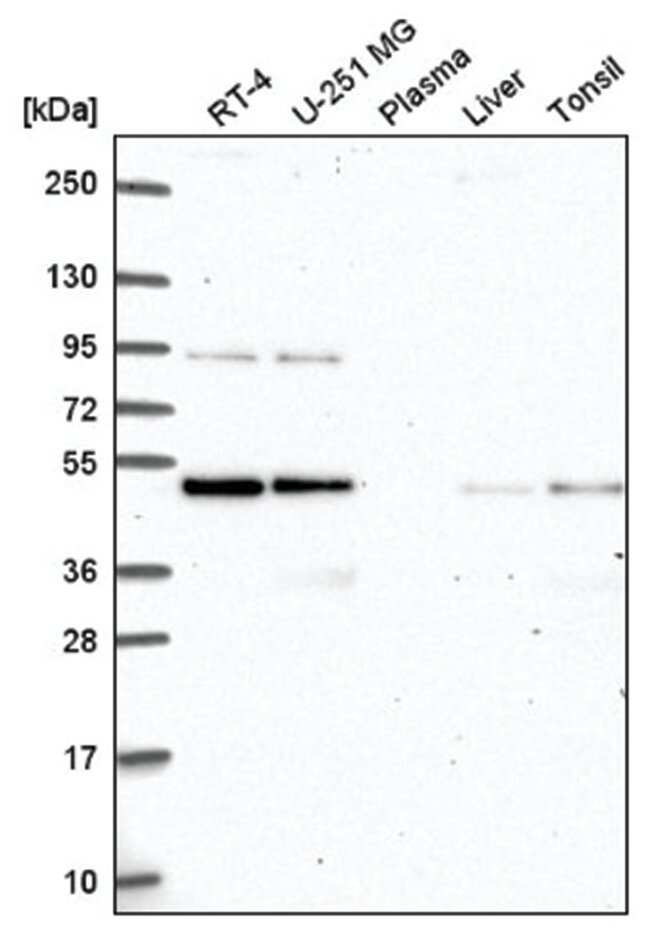 ATG4B Rabbit anti-Human, Polyclonal, Novus Biologicals 100µL; Unlabeled