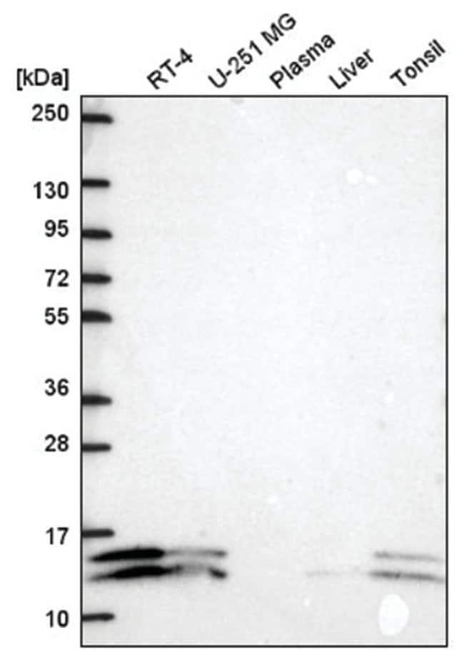ATP5J2 Rabbit anti-Human, Polyclonal, Novus Biologicals 100µL; Unlabeled