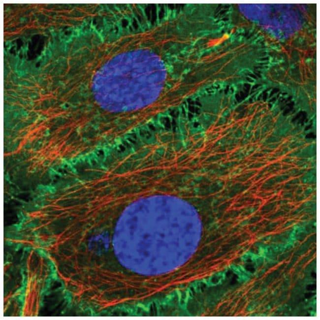 BASP1 Rabbit anti-Human, Polyclonal, Novus Biologicals 100µL; Unlabeled