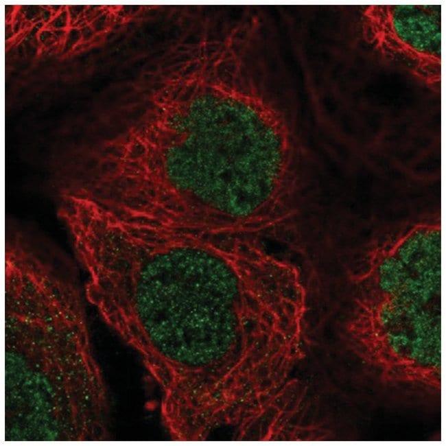 Buster3 Rabbit anti-Human, Polyclonal, Novus Biologicals 100µL; Unlabeled