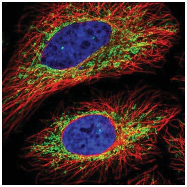 VPS35L Rabbit anti-Human, Polyclonal, Novus Biologicals 100µL; Unlabeled
