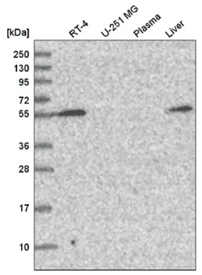 Carbohydrate Sulfotransferase 3/CHST3 Rabbit anti-Human, Polyclonal, Novus