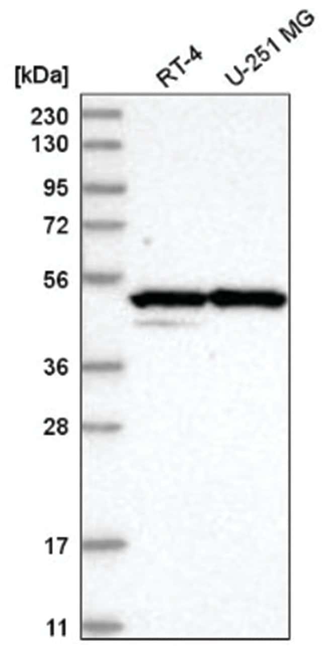 CBARA1 Rabbit anti-Human, Polyclonal, Novus Biologicals 100µL; Unlabeled