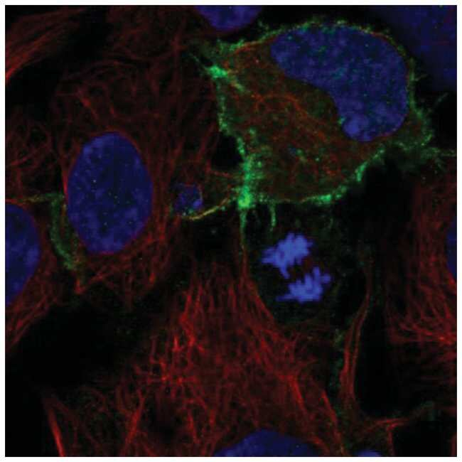 CD117/c-kit Rabbit anti-Human, Polyclonal, Novus Biologicals 100µL;