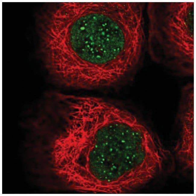 CENPB Rabbit anti-Human, Polyclonal, Novus Biologicals 100µL; Unlabeled