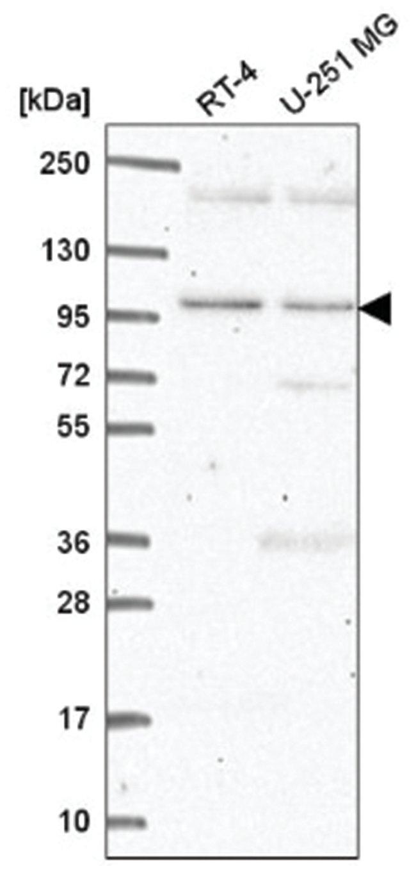 CLEC16A Rabbit anti-Human, Polyclonal, Novus Biologicals 100µL; Unlabeled