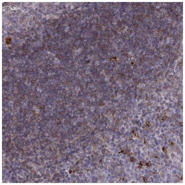 Cyclin F Rabbit anti-Human, Polyclonal, Novus Biologicals 100µL; Unlabeled