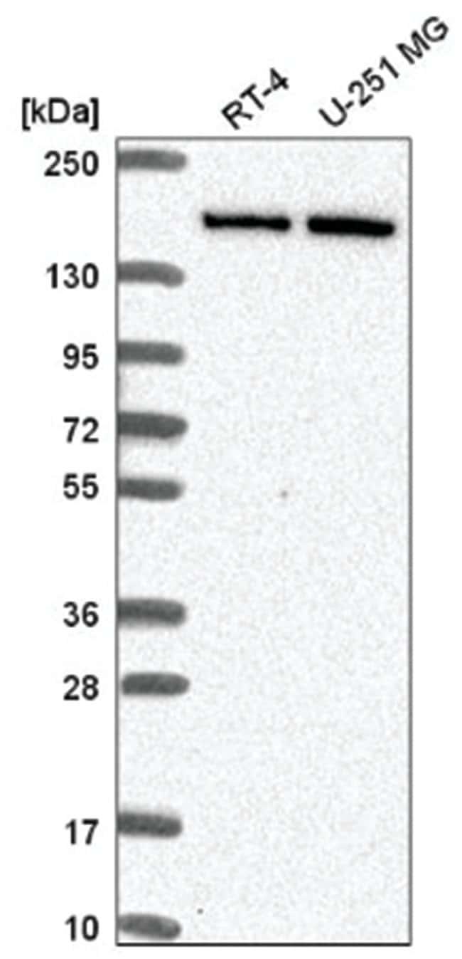 DIP2C Rabbit anti-Human, Polyclonal, Novus Biologicals 100µL; Unlabeled