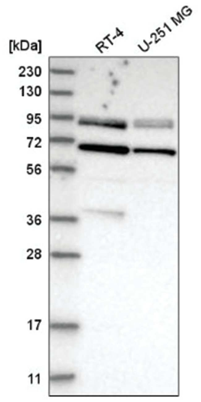 Dishevelled-2 Rabbit anti-Human, Polyclonal, Novus Biologicals 100µL;
