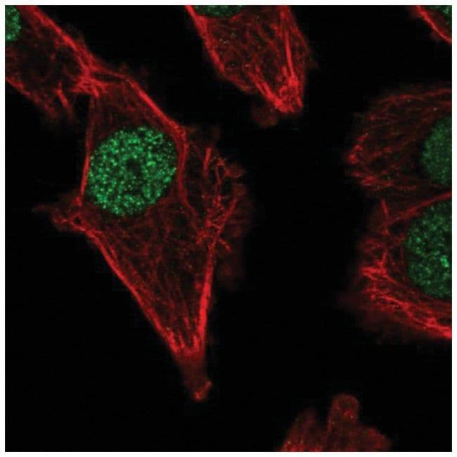 DNA polymerase mu Rabbit anti-Human, Polyclonal, Novus Biologicals 100µL;