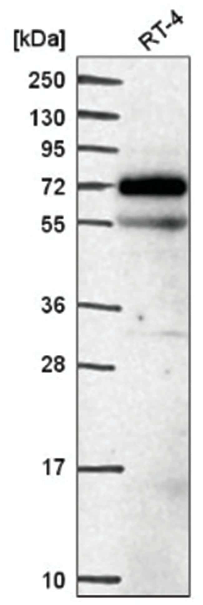 EEPD1 Rabbit anti-Human, Polyclonal, Novus Biologicals 100µL; Unlabeled