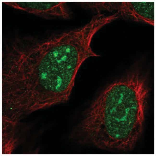 FAM133B Rabbit anti-Human, Polyclonal, Novus Biologicals 100µL; Unlabeled