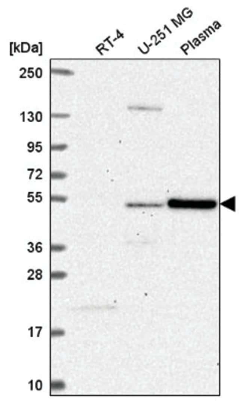 FBX09 Rabbit anti-Human, Polyclonal, Novus Biologicals 100µL; Unlabeled